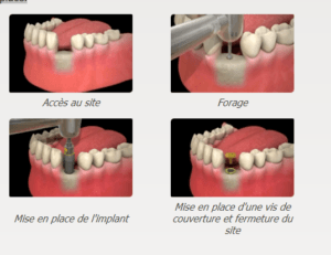 LA SCIENCE DES IMPLANTS